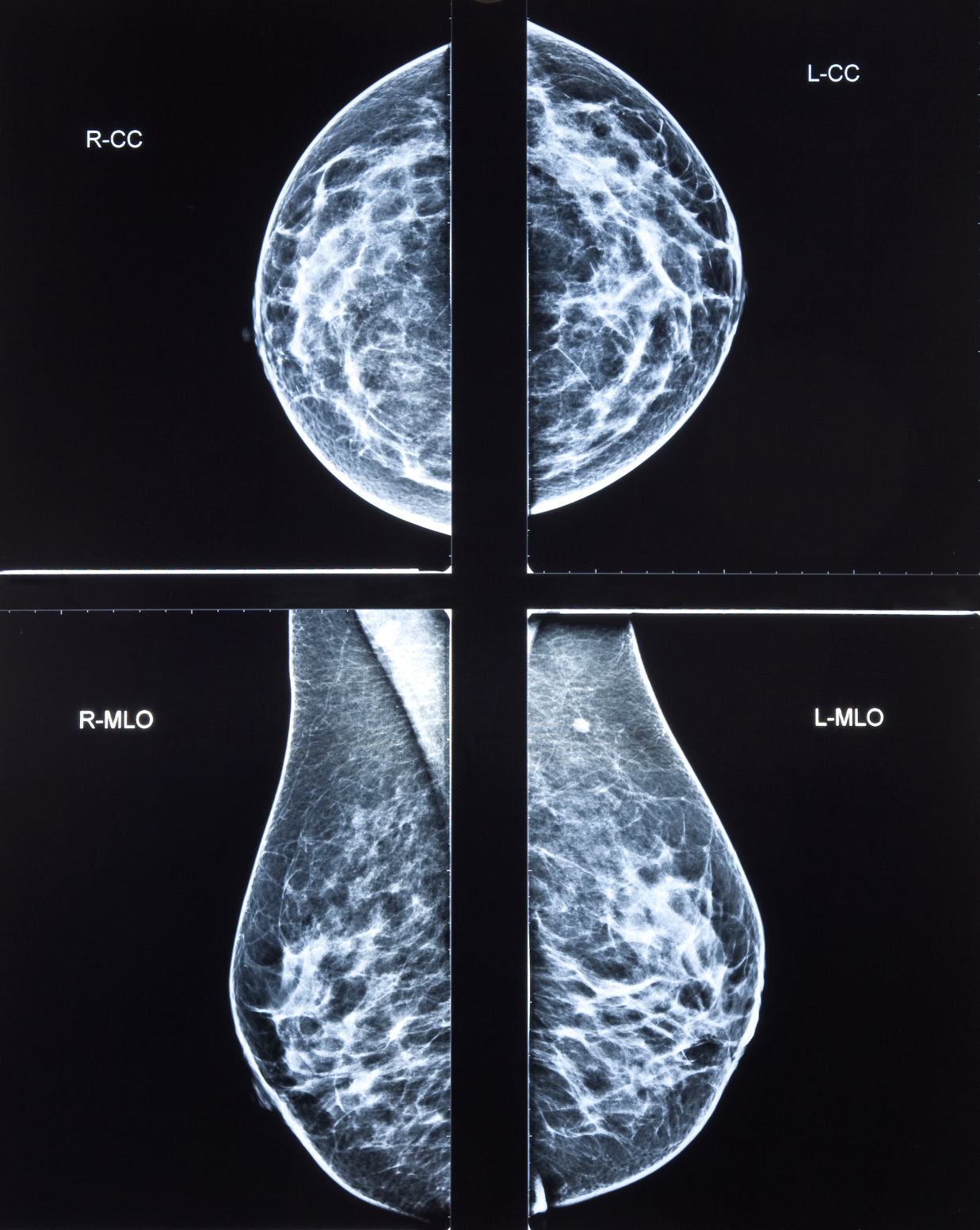 tomosynthesis for breast imaging Mammography is an effective imaging tool for detecting breast cancer at an early stage and is the only screening modality proved to reduce mortality from breast cancer.