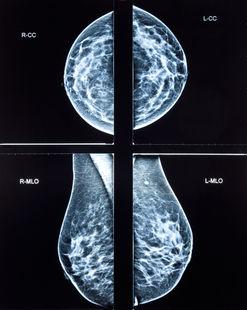 "Mammograms: Are ""Fancy"" Ones Cost-Effective?"