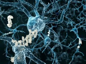 Alzheimers dementia amyloid plaques neurons brain