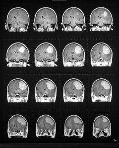 brain tumor glioma coronal