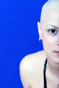 woman bald cancer white