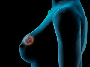 breast mass diagram