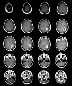 MRI glioblastoma GBM