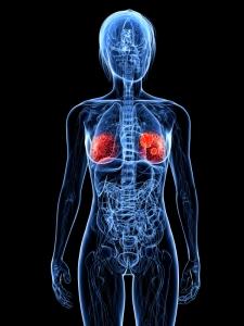 breast cancer in female body diagram