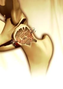 hip bone osteoporosis broken