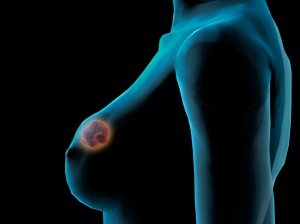 breast cancer tumor