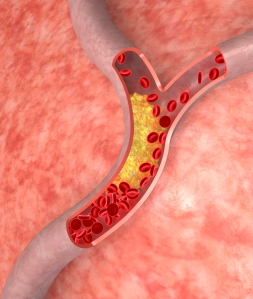 cholesterol blood vessel
