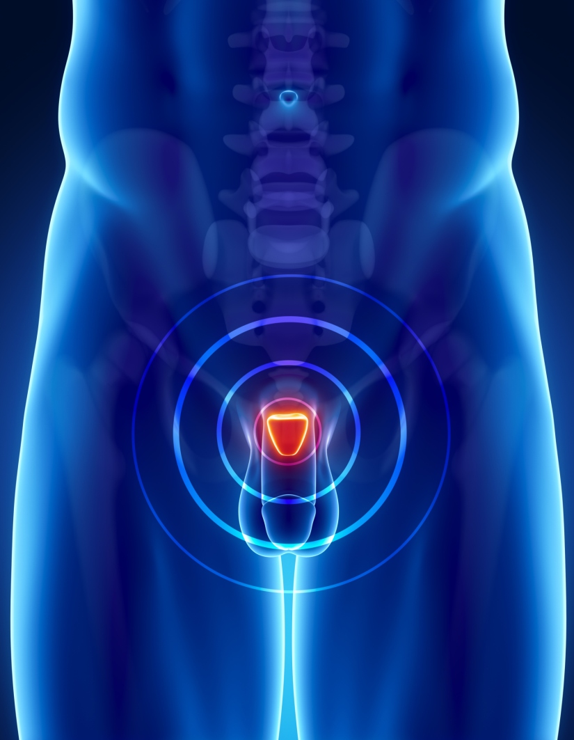 Lethal Metastatic Prostate Cancer May Spread from OtherSites
