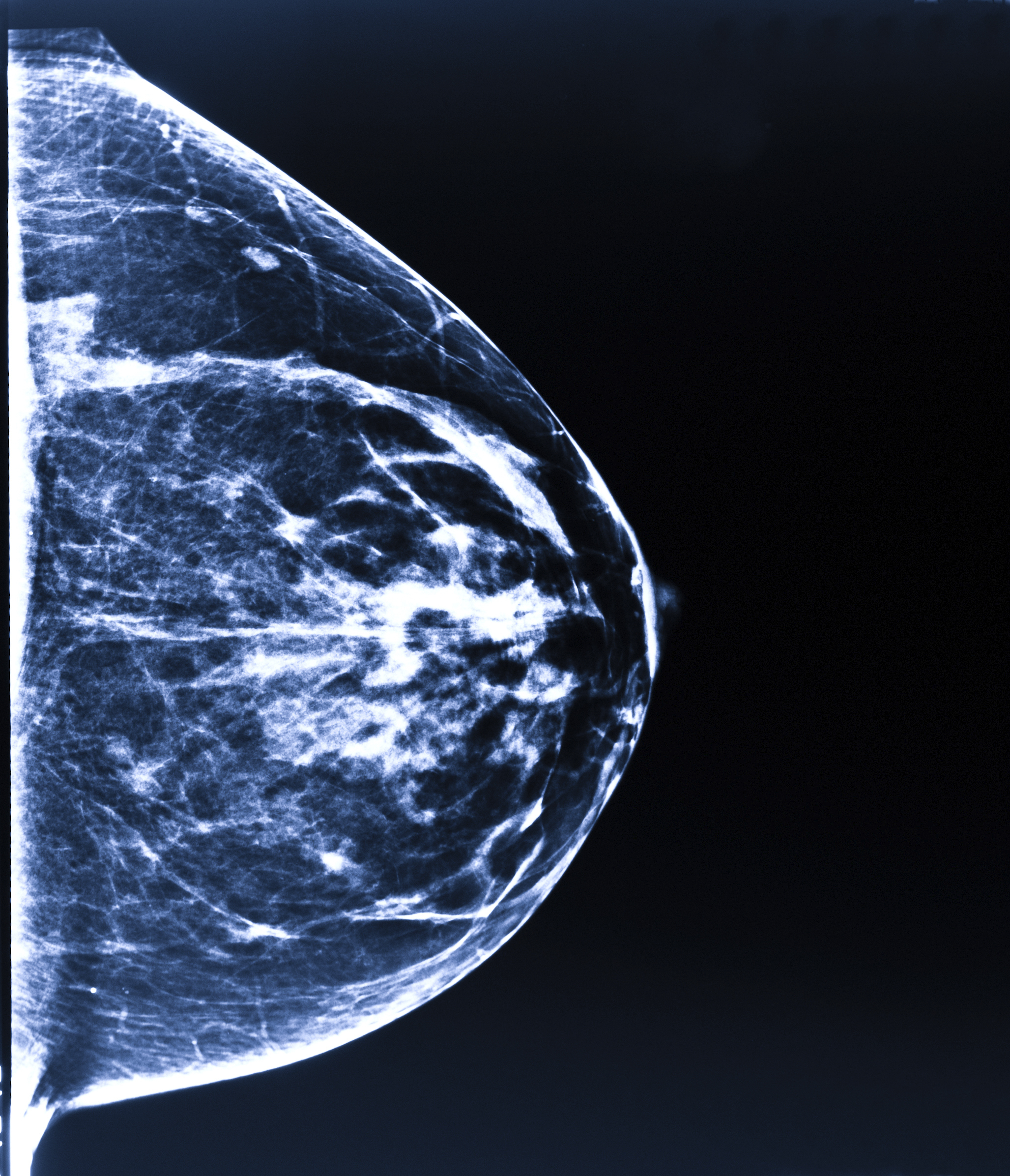 Background although women diagnosed with ductal carcinoma in situ