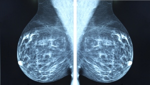 mammograms mediolateral views