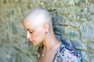Bald woman chemotherapy patient white woman