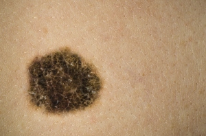 melanoma mole