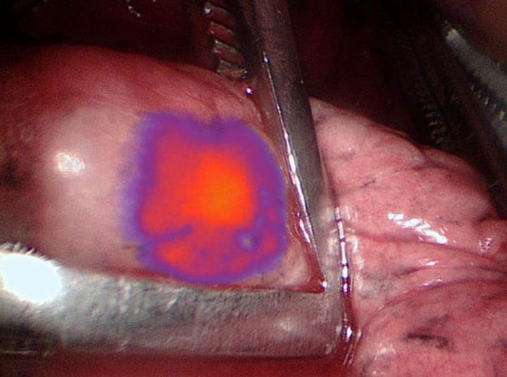 Glowing tumor technology helps surgeons remove hidden cancer cells