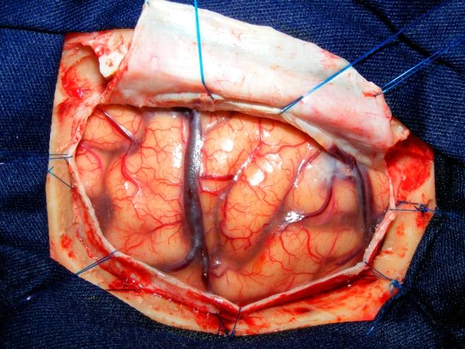 brain tissue.jpg